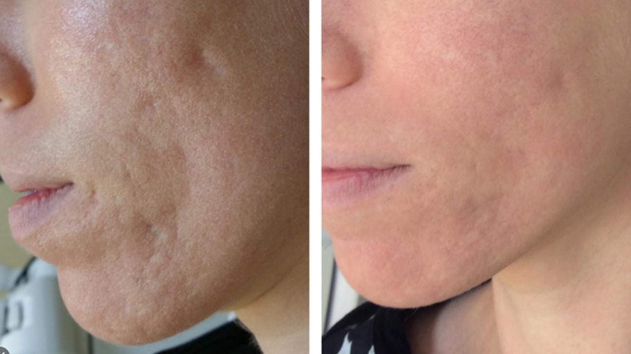 Acne Scar Removal in Javea