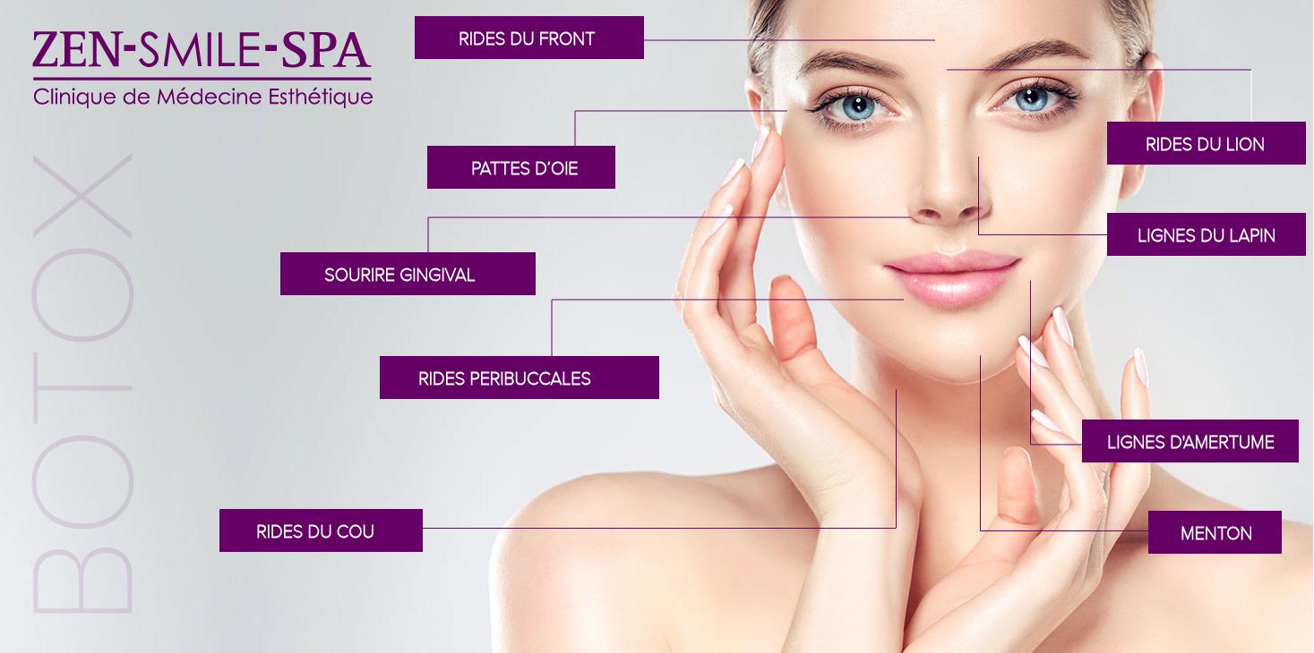Zones de traitement Botox