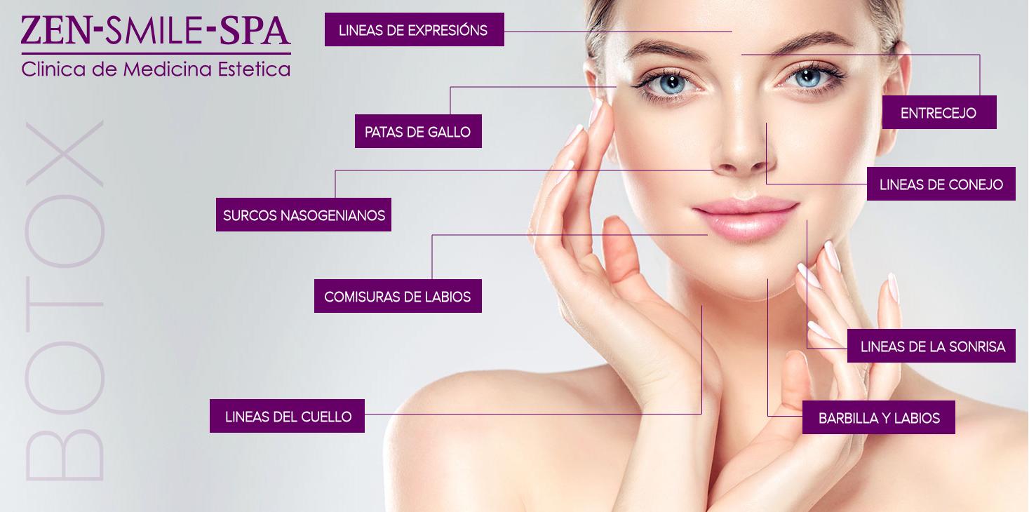 Botox en javea