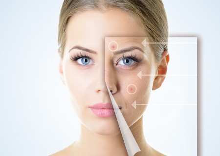 Acne Scar Removal in Javea