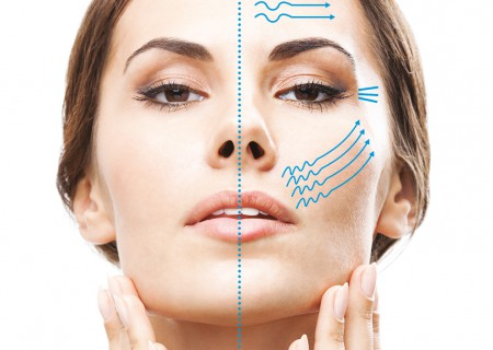HIFU Treatments in Javea | Facelift javea | Skin Tightening