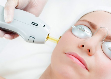 Yag Laser in Javea - Zen Smile Medispa clinic - Eliminate blemishes , signs of aging